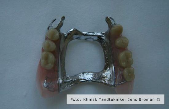 delprotese Klinisk Tandtekniker Jens Broman
