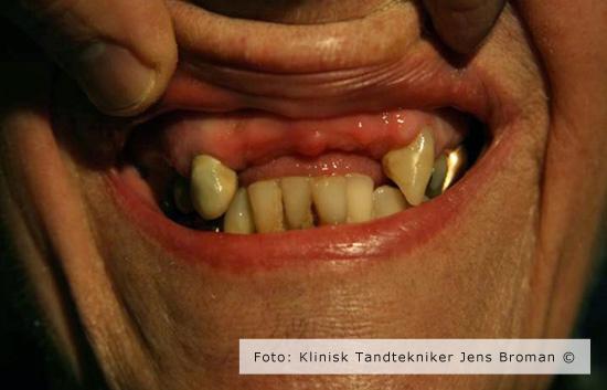delprotese 2 Klinisk Tandtekniker Jens Broman
