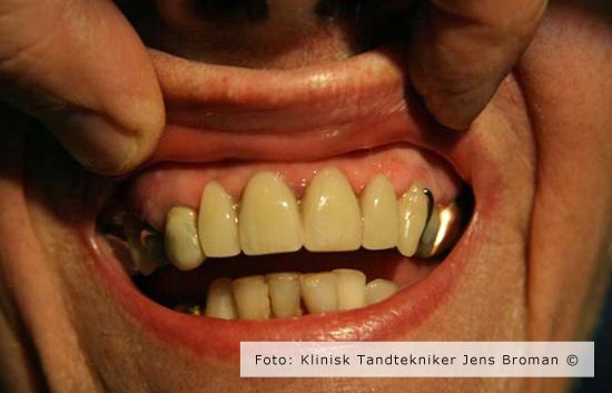 delprotese i mund Klinisk Tandtekniker Jens Broman