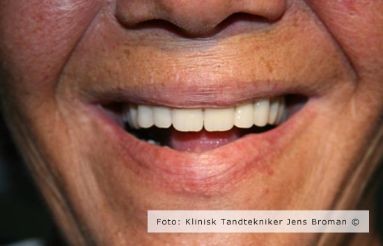 helprotese smil Klinisk Tandtekniker Jens Broman