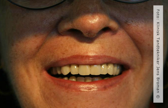 Helproteser Klinisk Tandtekniker Jens Broman