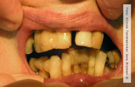 Immidiat protese før Klinisk Tandtekniker Jens Broman