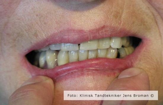 Immidiat protese efter Klinisk Tandtekniker Jens Broman
