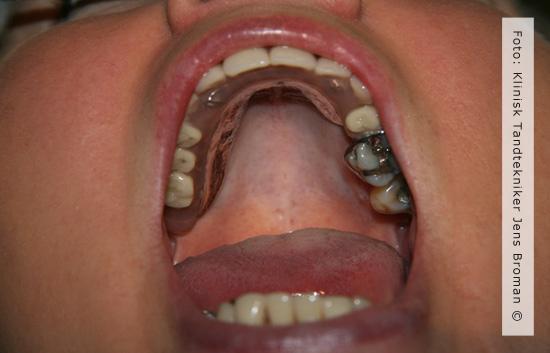 Protese med kombination af implantat og naturlig rod af Klinisk Tandtekniker Jens Broman