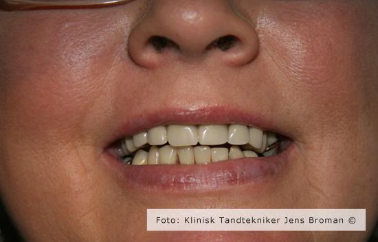 Færdig protese med kombination af implantat og naturlig rod lavet af Klinisk Tandtekniker Jens Broman