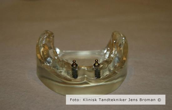 Tandløs underkæbe med to kugleimplantater Klinisk Tandtekniker Jens Broman