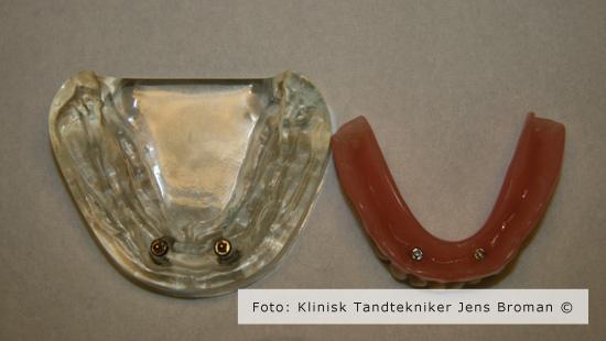 Kugleimplantater og underprotese med tryklåse monteret Klinisk Tandtekniker Jens Broman