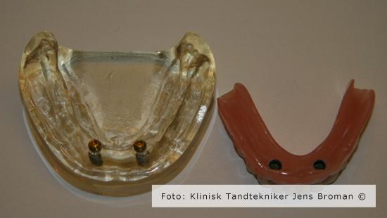 Locator Klinisk Tandtekniker Jens Broman