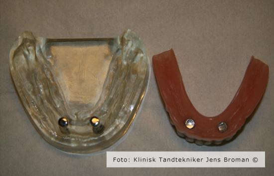 protese med magnet Klinisk Tandtekniker Jens Broman