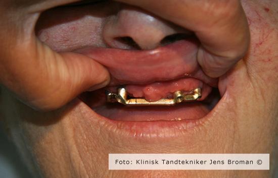 protese monteret med stav Klinisk Tandtekniker Jens Broman