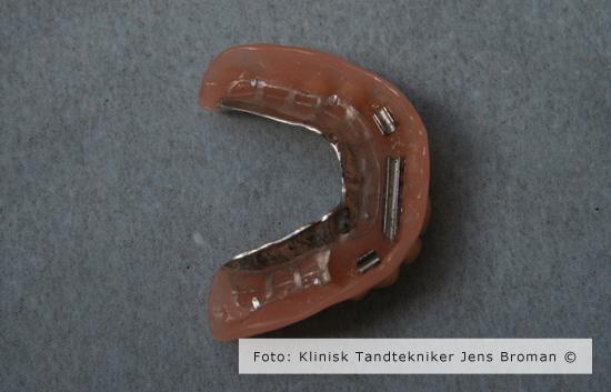 Stav protese Klinisk Tandtekniker Jens Broman