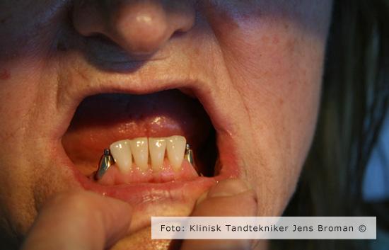 Tryklås på naturlig rod før behandling af Klinisk Tandtekniker Jens Broman