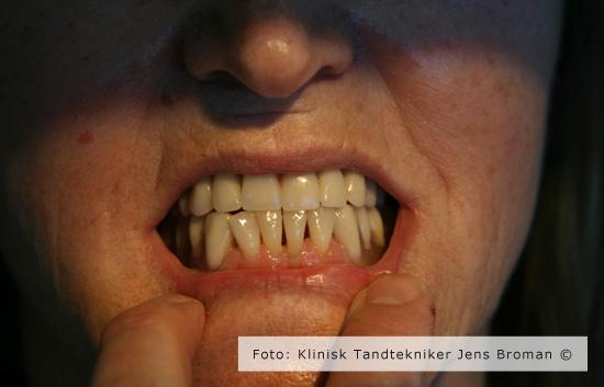 tryklås færdig Klinisk Tandtekniker Jens Broman